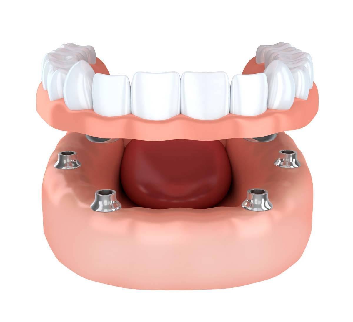 Stabilizzazione dentiera Roma
