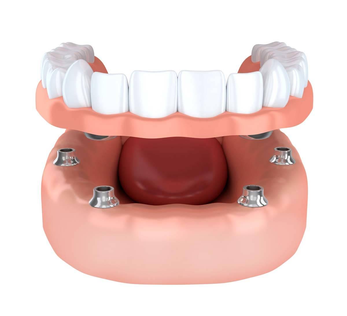 Stabilizzazione dentiera