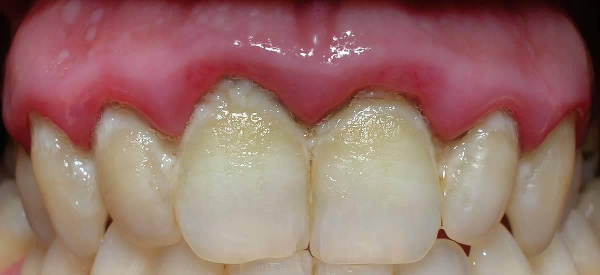 Igiene orale domiciliare