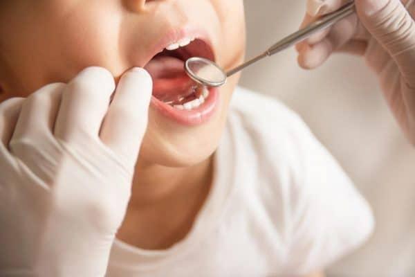 pronto soccorso odontoiatrico per bambini