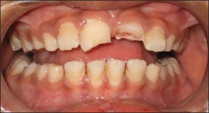 dente rotto cosa fare
