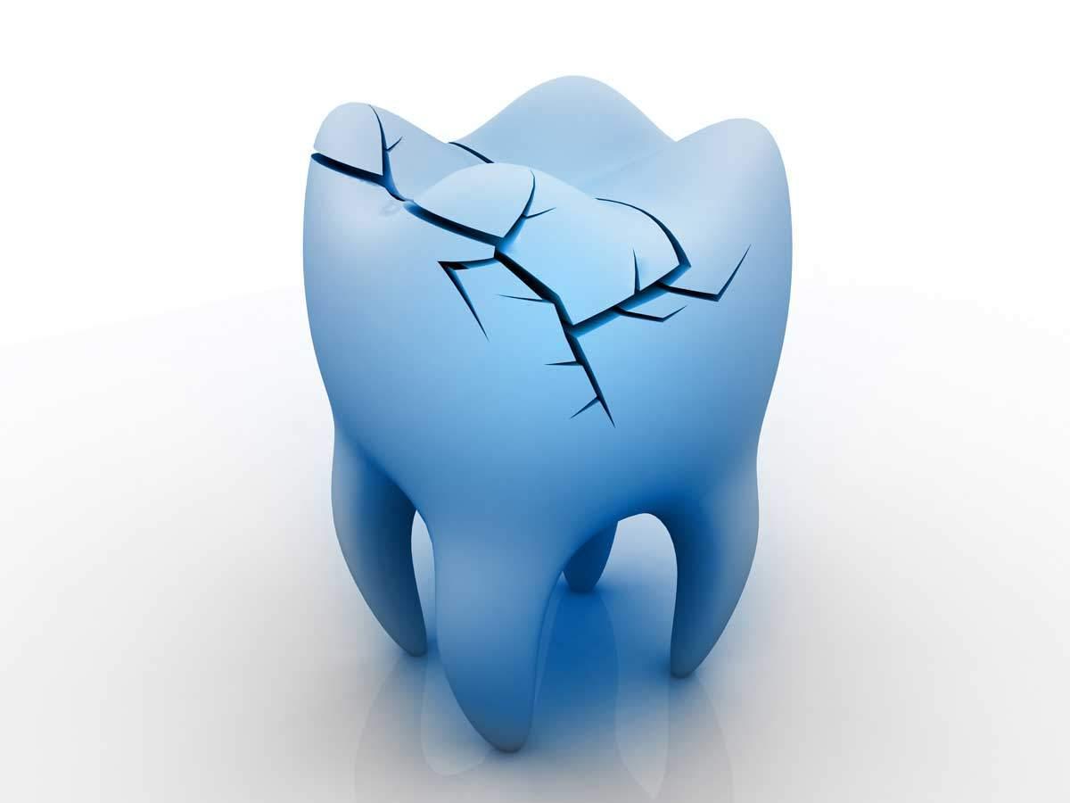 frattura dente