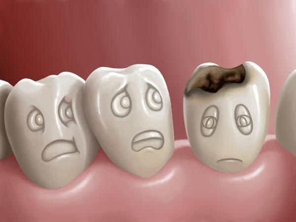 carie in pronto soccorso dentistico