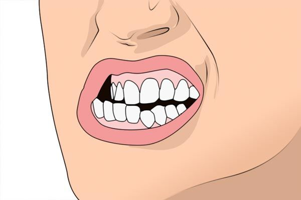 bruxismo in pronto soccorso dentistico