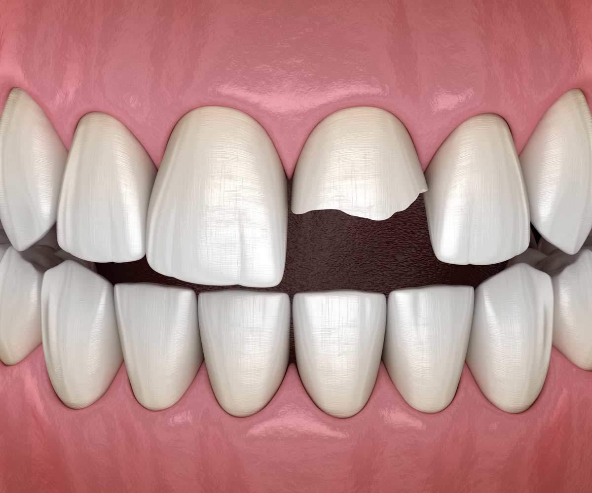 dente rotto e scheggiato