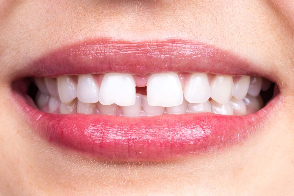 Denti anteriori